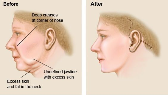 Solution for Saggy face and jowl