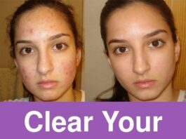 Clear your acne overnight