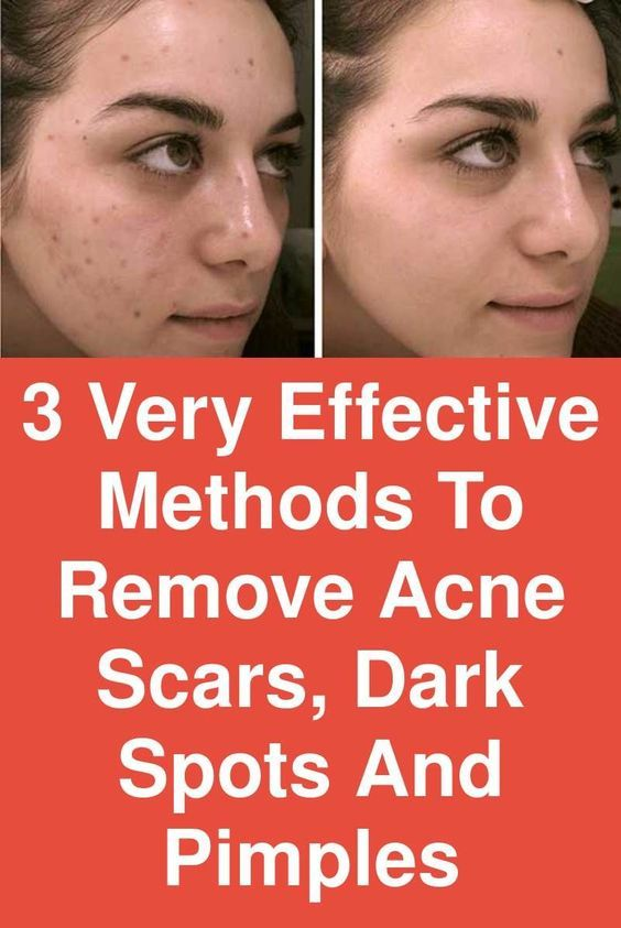 Easy removal of acne, scars and dark pimples and spots